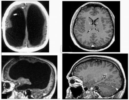 Наш мозг - всего лишь коммутатор?
