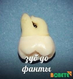 Зубы в фанте и пиве долго не живут.