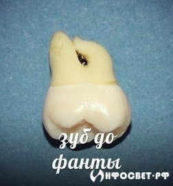 ШОК! Зубы в коле!